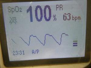 P1000561